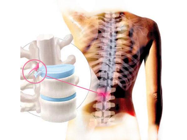 Комплекс упражнений от остеохондроза позвоночника видео